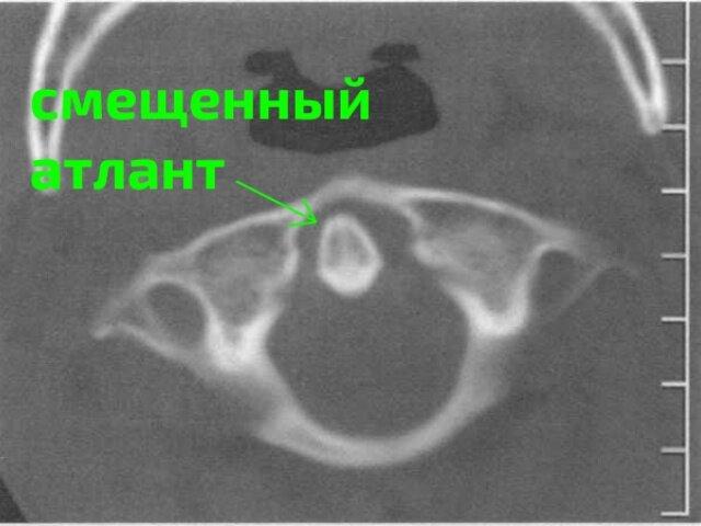 Стоит ли сделать МРТ атланта?